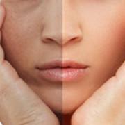 Poznaj wiek swojej skóry http://zdrowszeznatury.pl